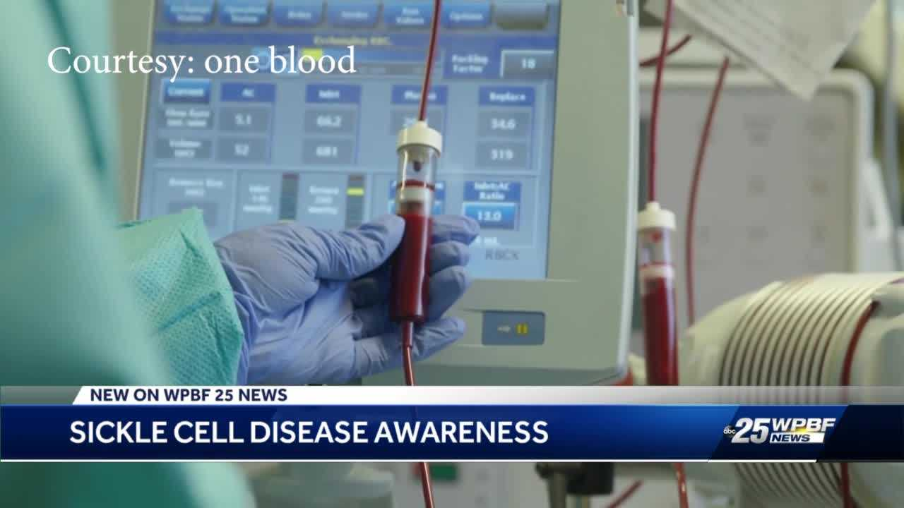 'No Brainer': Boynton Beach clergy respond to hosting blood drive to focus on sickle cell disease